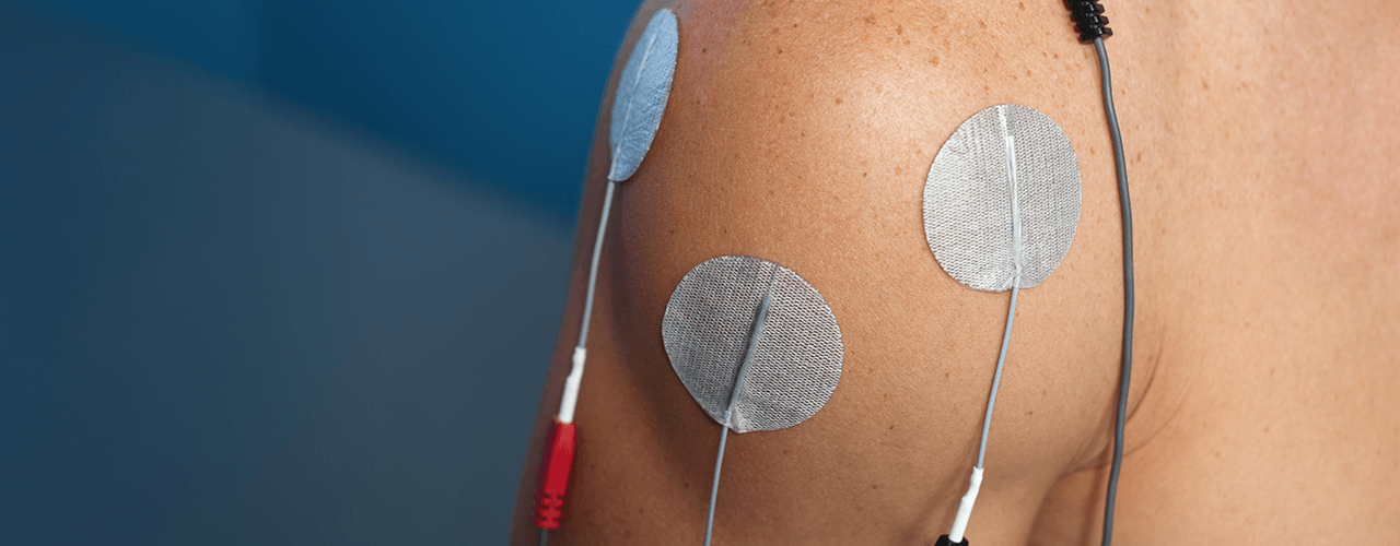 electrical-stimulation ptc of rocky hill