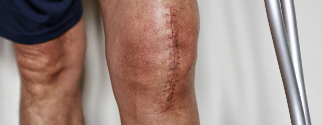 Total Joint Replacement Rocky Hill, CT